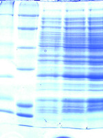 Protein gel image
